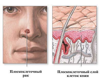 - симптомы и лечение рака кожи носа