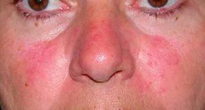 Что делать когда нос покраснел или посинел?