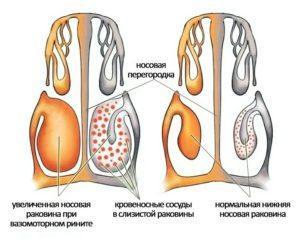 нейровегетативный ринит симптомы