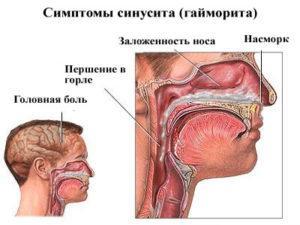 катаральный синусит что это такое