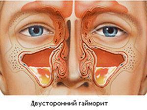 Что такое ринит и синусит