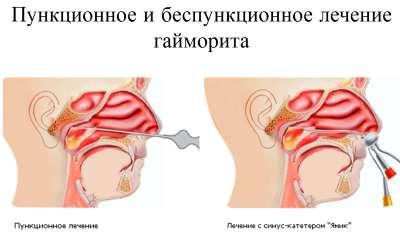 -что делать если при гайморите заложило ухо