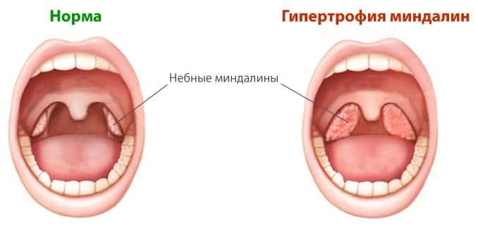 показания к удалению носоглоточной миндалины