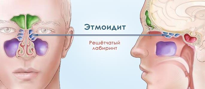 синусит как проявляется