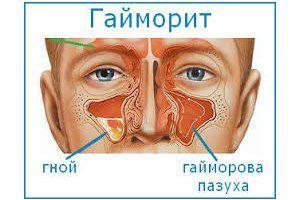 гайморит у взрослого симптомы и лечение
