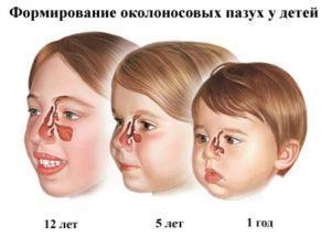 -как понять что у ребенка гайморит