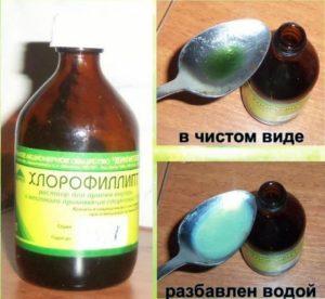 хлорофиллипт масляный при беременности для полоскания