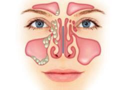 полипоза носа