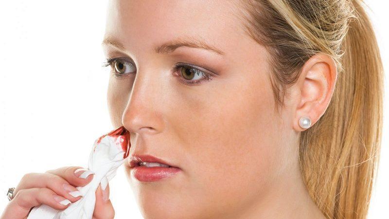 кровь из носа причины у взрослого после высмаркивания