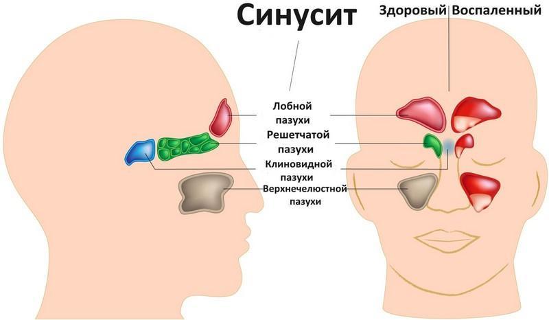 ярко желтое выделение из носа у взрослого