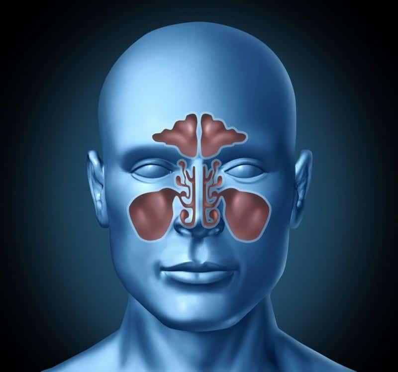 Компьютерная томография придаточных пазух носа вред