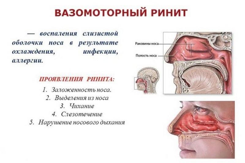 причины заложенности одной ноздри