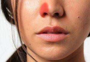 что делать если постоянно заложена одна ноздря но соплей нет