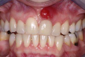 гайморит после удаления зуба