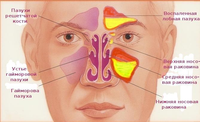 запах изо рта при туберкулезе