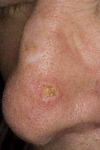 -начальная стадия рака кожи носа
