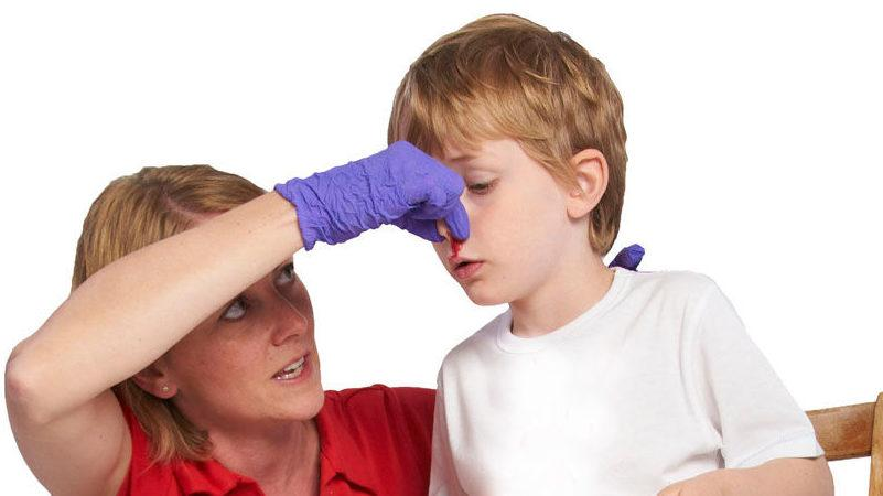 как отличить перелом носа от ушиба