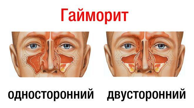 Воспаленное горло дети лечить