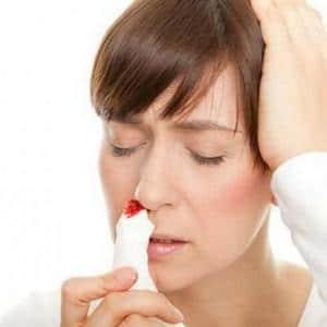 - техника выполнения остановки носового кровотечения у детей