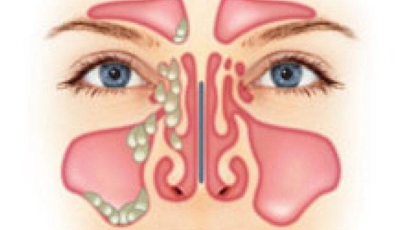 анатомия пазухи носа