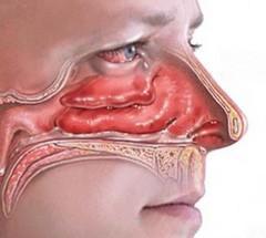 как определить запах изо рта у себя