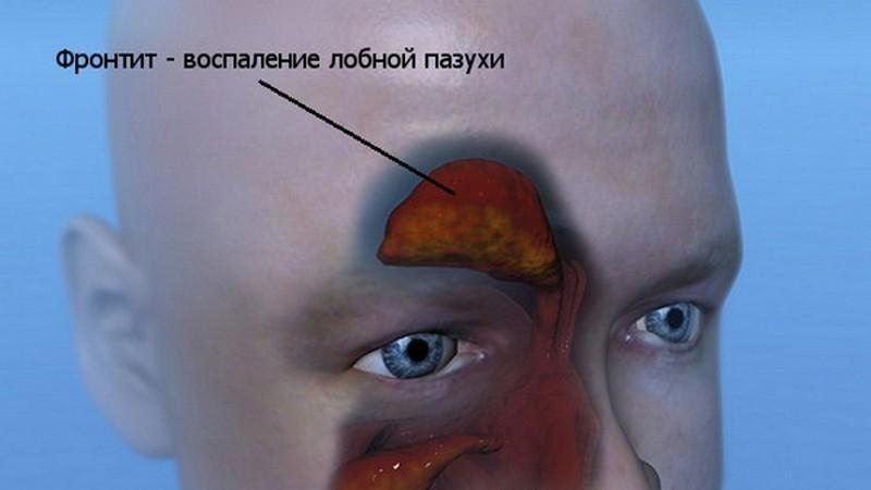 болезни связанные с носом