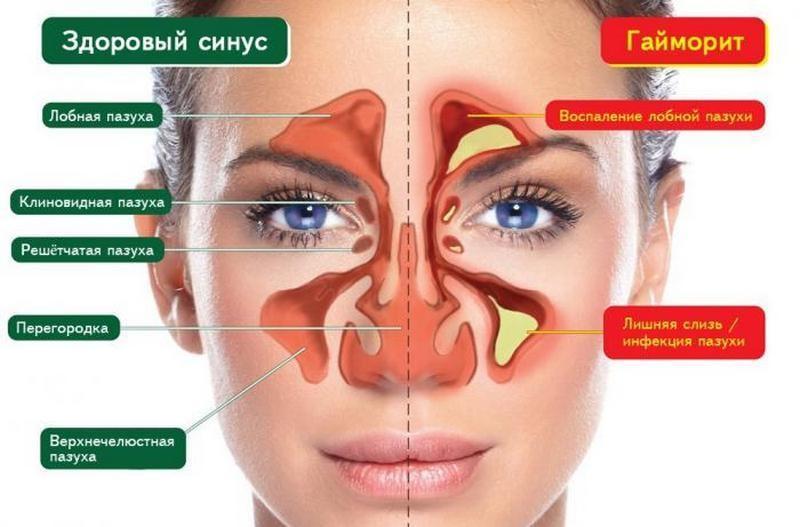 симптомы и лечение заболеваний носа