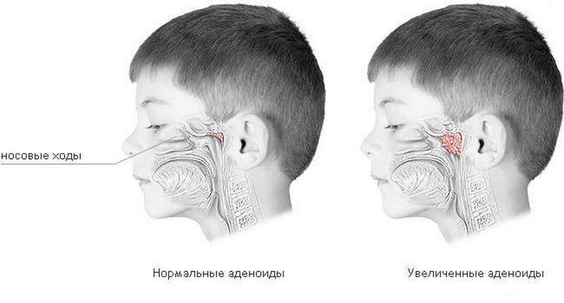 Что делать если ребенок не дышит носом ночью?