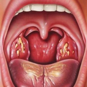 -чем и как лечить боль в носоглотке