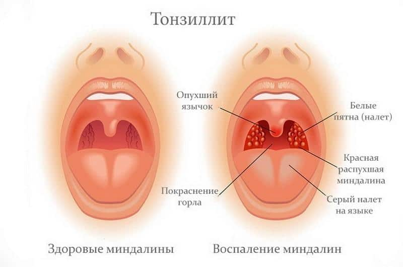 обострение хронического тонзиллита при беременности