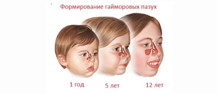 симптомы и лечение катарального гайморита у детей