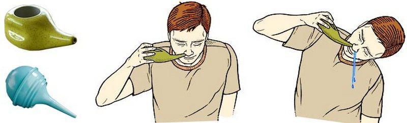 чистка пазух носа