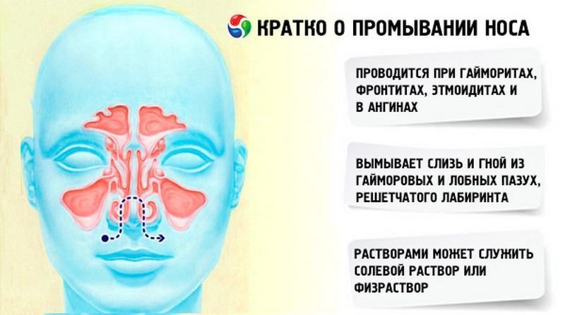 Как и чем промывать нос при гайморите в домашних условиях