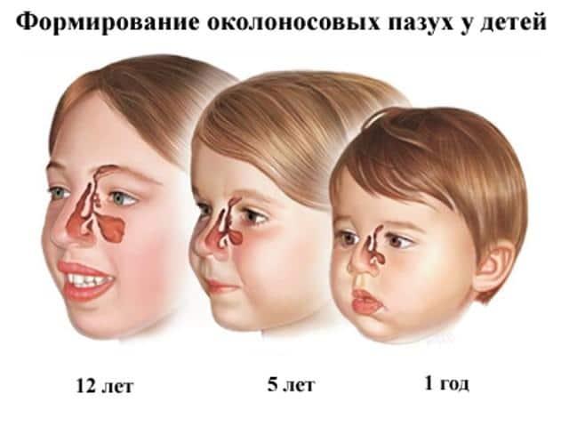 лечение гайморита в домашних условиях у детей