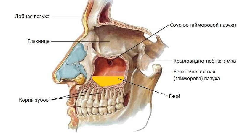болят зубы при гайморите что делать
