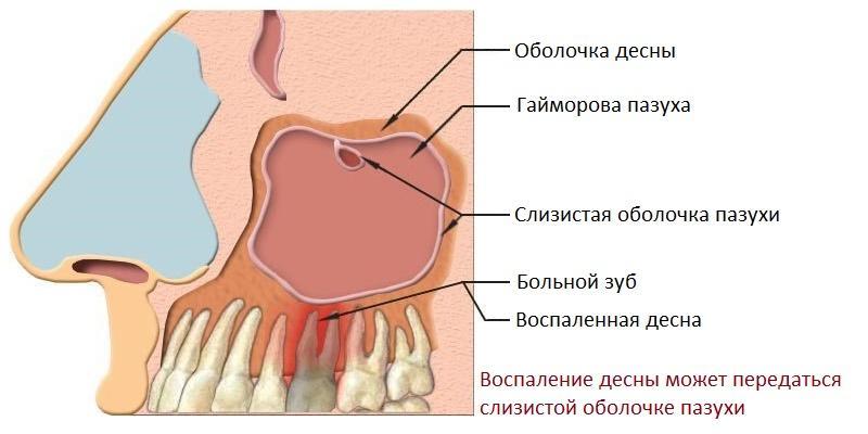 Может ли быть гайморит из-за больного зуба