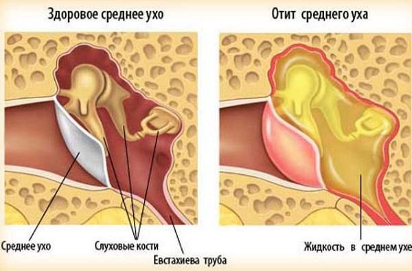 -причины жжения в носоглотке