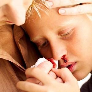 часто течет кровь из носа у ребенка