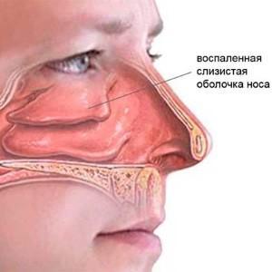 -симптомы и лечение грибкового гайморита