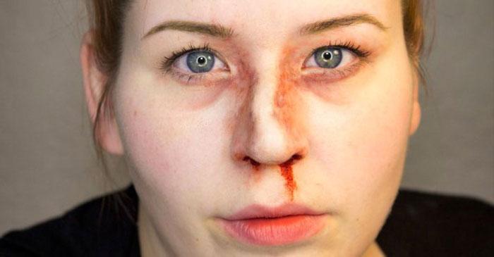 признаки сломанного носа