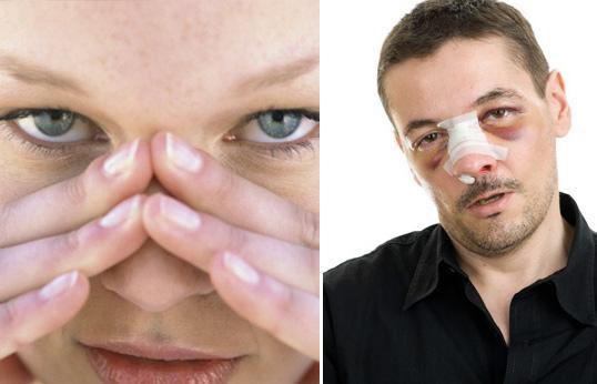 как понять что нос сломан