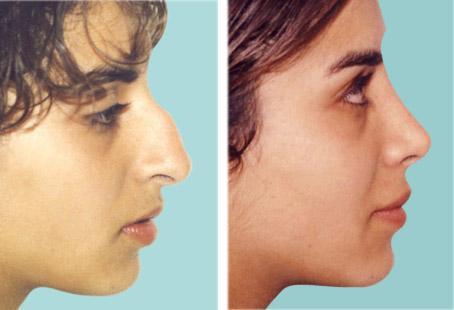 определить сломан ли нос