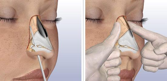 как лечить сломанный нос