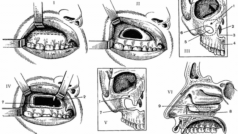 симптомы и лечение кисты в носу