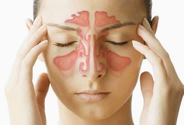 симптомы и лечение острого гайморита