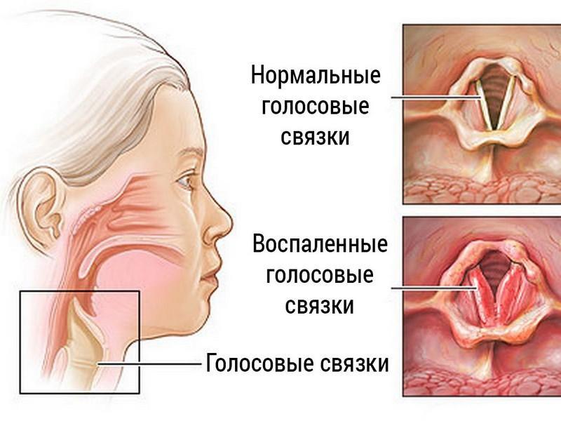 синусит и его осложнения