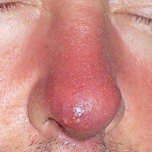 болит кончик носа внутри при нажатии