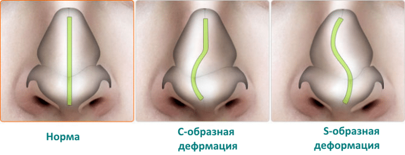 часто заложен нос
