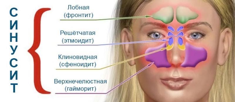 почему болит голова от насморка