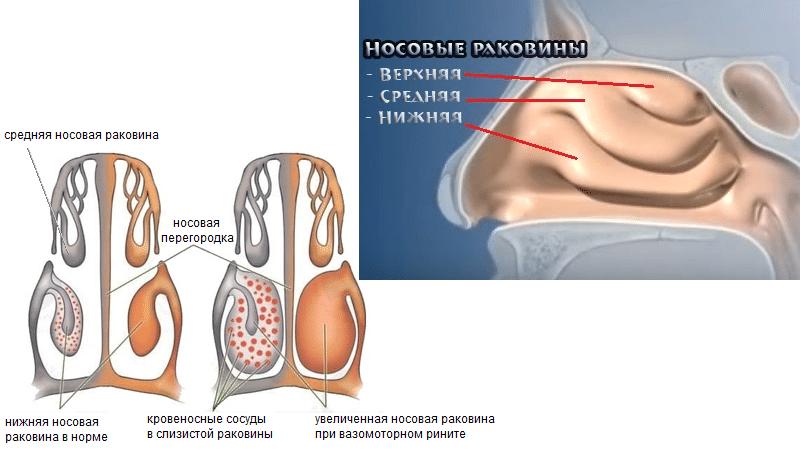 двусторонняя конхотомия нижних носовых раковин